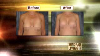 To Lift or Not to Lift  Breast Augmentation