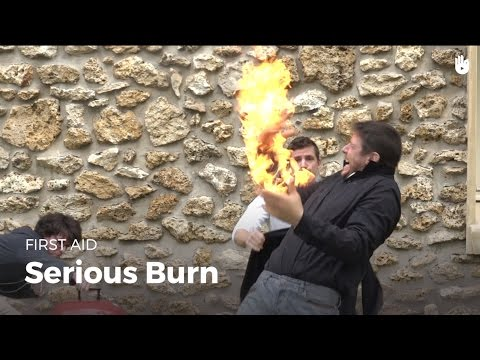 First Aid: Serious Burn | First Aid
