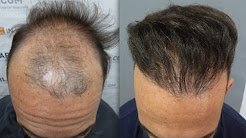 4702 Grafts. Hair Transplant by FUE Technique. DUPA. Injertocapilar.com.1205/2013.