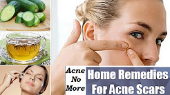 Natural Remedies for Acne and Pimples - Permanent Solution