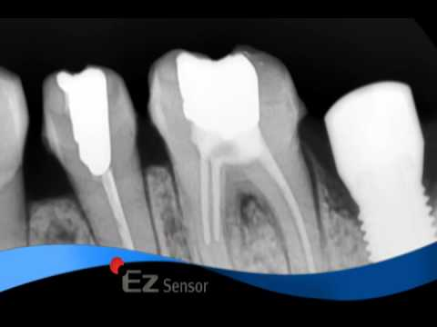 Dental Quality/Discovery - EZ Sensor