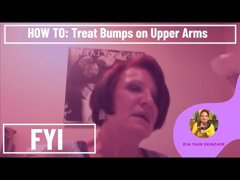 Free Download Ebook Pdf Get Rid Of Bumps On Upper Arm