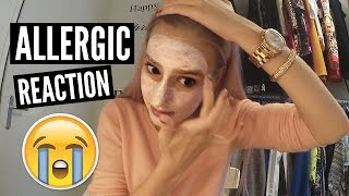 FAIL: ALLERGIC TO MY FACE MASK | Chanou's Life