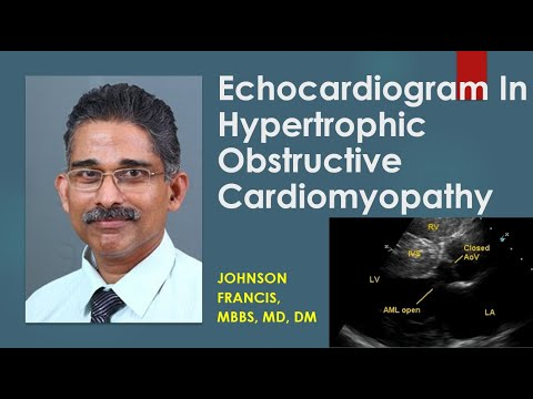 Image result for hypertrophic obstructive cardiomyopathy echo