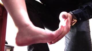 NeuroExam: Eliciting Ankle Clonus in the paretic side