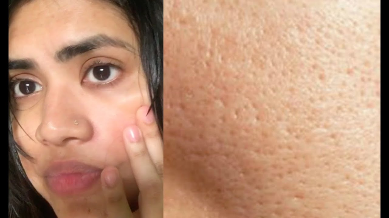 Pics of deep facial pores