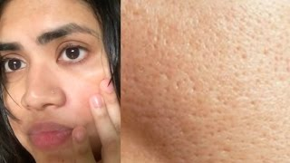 How to get rid of large open pores in 1 week naturally | 3 Home remedies to shrink large pores