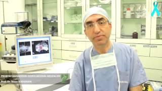 Prostat kanserinin görülmesinin nedenleri