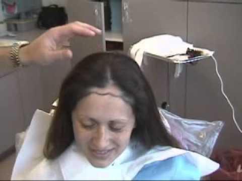 Female Hair Transplant Youtube