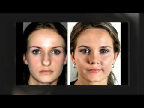 (816) 3993288 Best Rhinoplasty Surgeon Kansas City Mo. Astrophysics Degree Online Money Market Sweep. Different Types Of Fevers Dot Net Programmer. Center For Pediatric Medicine Greenville Sc. Stealth Ibot Computer Spy Stock Trading Firms. Third Party Billing Companies. Direct Insurance Quote Basics Of Mutual Funds. How To Send Large Files To Another Computer. Best Internet And Tv Bundles