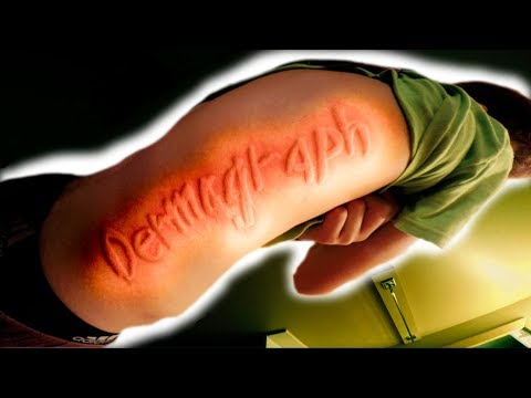RARE SKIN DISORDER! YOU CAN DRAW PICTURES ON HIS SKIN!