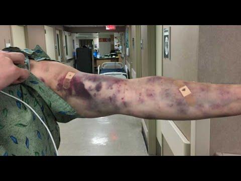 Strange insect bite turns Arizona man into medical mystery