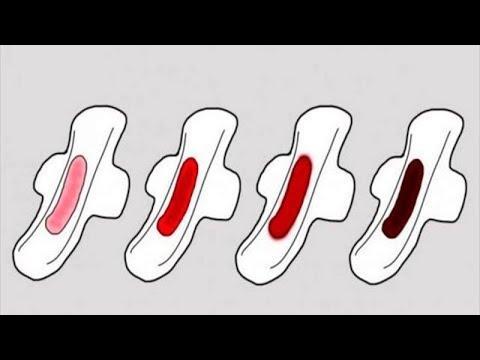 Schau, was die Farbe des Blutes während der Periode über deine Gesundheit verrät!