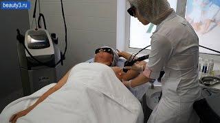 Лазерная эпиляция подмышечных впадин в клинике Реформа(Показано выполнение процедуры эпиляции подмышечных впадин александритовым лазером. Сайт клиники http://www.reffo..., 2015-09-11T12:33:01.000Z)