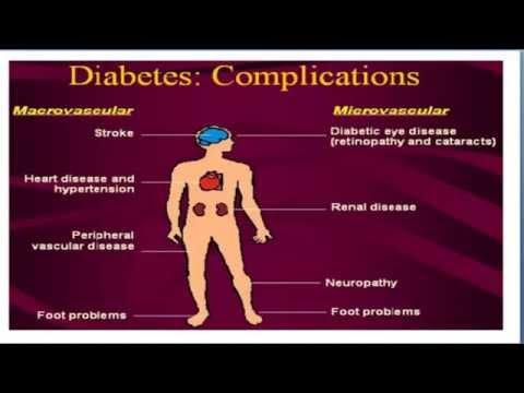 Diabetes Mellitus Adalah