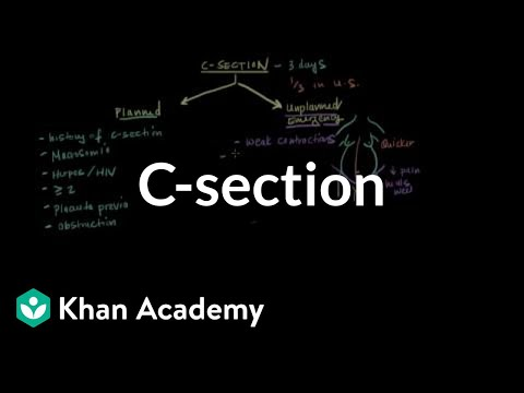 C-section | Reproductive System Physiology | NCLEX-RN | Khan Academy
