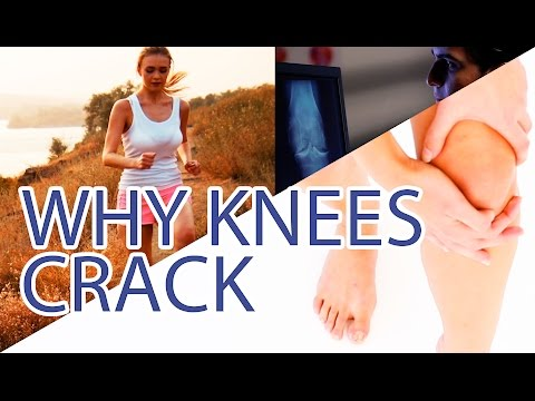 WHY YOUR KNEES CRACK | Joint Crepitations