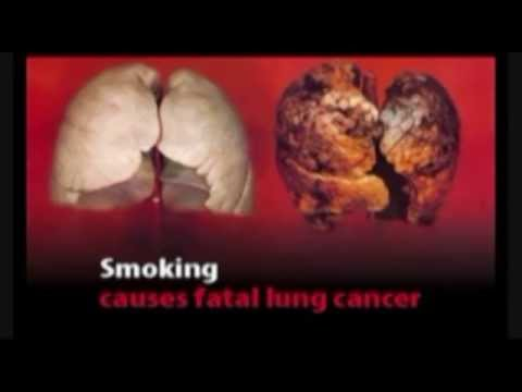 Smoking Anything is Bad for You