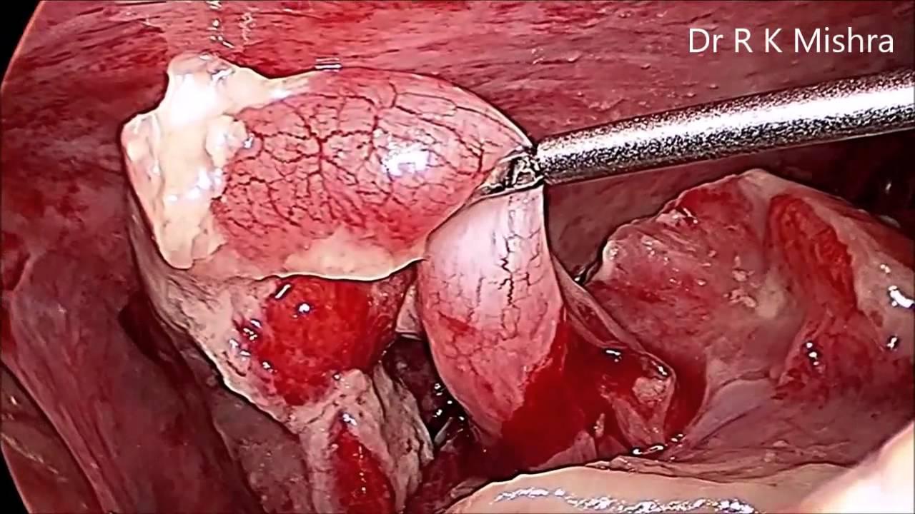 Laparoscopic Management of Rupture Pediatric Appendix in ...