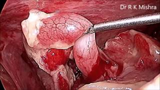 Laparoscopic Management of Rupture Pediatric Appendix in Pediatric Patient