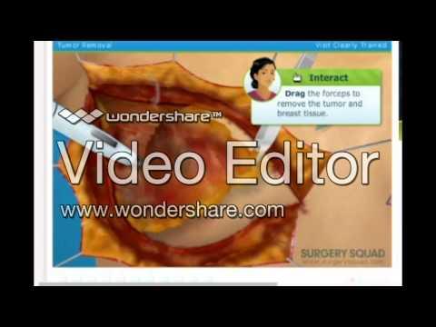 Virtual Double Mastectomy