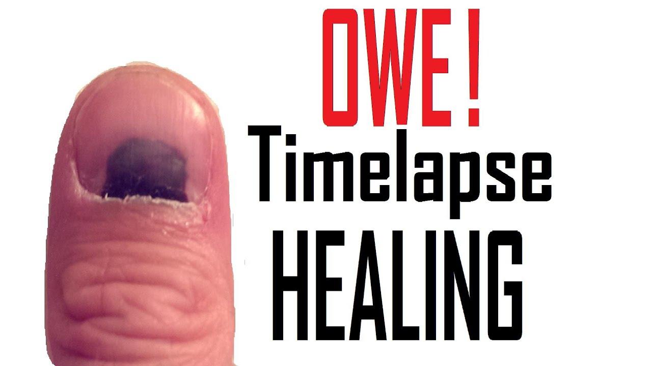 Smashed Thumb Nail Healing Timelapse Youtube