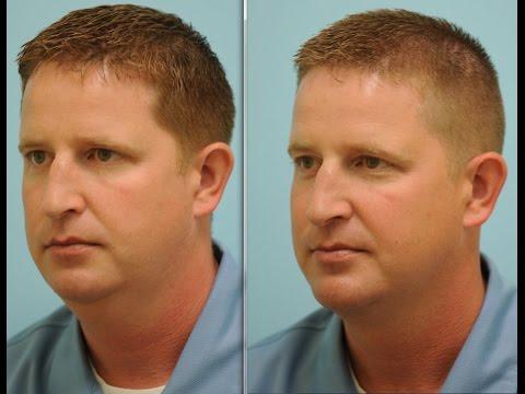 Liposuction/Lipocontouring Testimonials