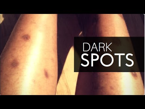 🏃 How to Get Rid Of Dark Spots On Legs Fast (Part 2)🏃 Skin care meets Hyperpigmentation