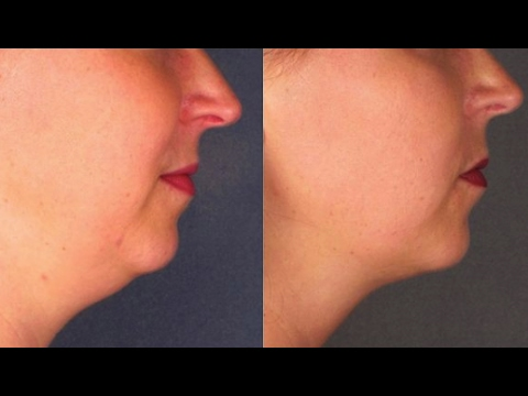How to Get Rid Of Double Chin Fast With Face Massage 💆 | Neck Fat Reduction Without Surgery 🌺