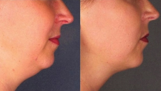 how to get rid of double chin fast with face massage   neck fat reduction without surgery