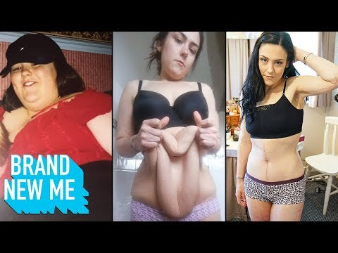 i-lost-140lbs-and-finally-had-my-extreme-excess-skin-removed-|-brand-new-me