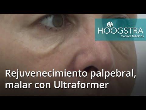 Rejuvenecimiento palpebral, malar con Ultraformer (18043)