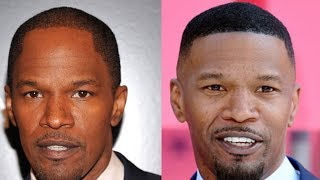 Celebrity Hair Transplant Transformations! Why Shaved Head Doesn´t Suit Everybody! PART 3