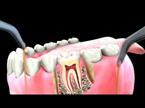 Dental video - Root canal treatment