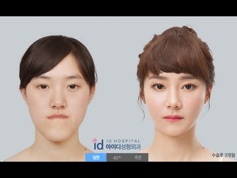 'Safer Two-jaw Surgery' with 3D printer (Korea plastic surgery, double jaw surgery, plastic surgery) - 동영상