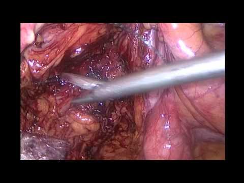 corrección prolapso rectal por laparoscopia