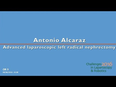 CILR 2016 - Antonio Alcaraz - Advanced laparoscopic left radical nephrectomy