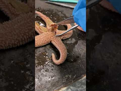 Star Fish Pyloric Stomach