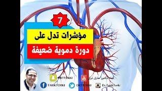 7 مؤشرات تدل على ضعف الدوره الدموية فى جسمك | علامات ضعف الدورة الدموية بجسمك