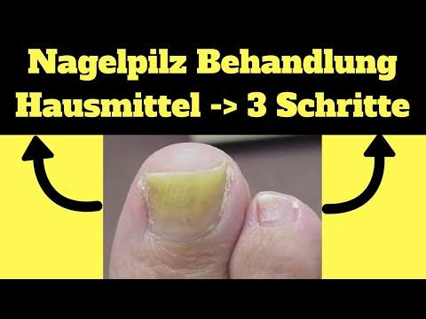 nagelpilz-behandlung-hausmittel-✔-3-schritte-um-ekligen-nagelpilz-loszuwerden