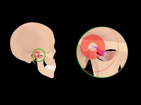 ear-pain-due-to-tmj-(jaw-joint)-disorders