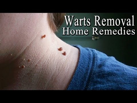Warts 5 Simple Home Remedies To Get Rid Of Facial Warts Naturally Youtube
