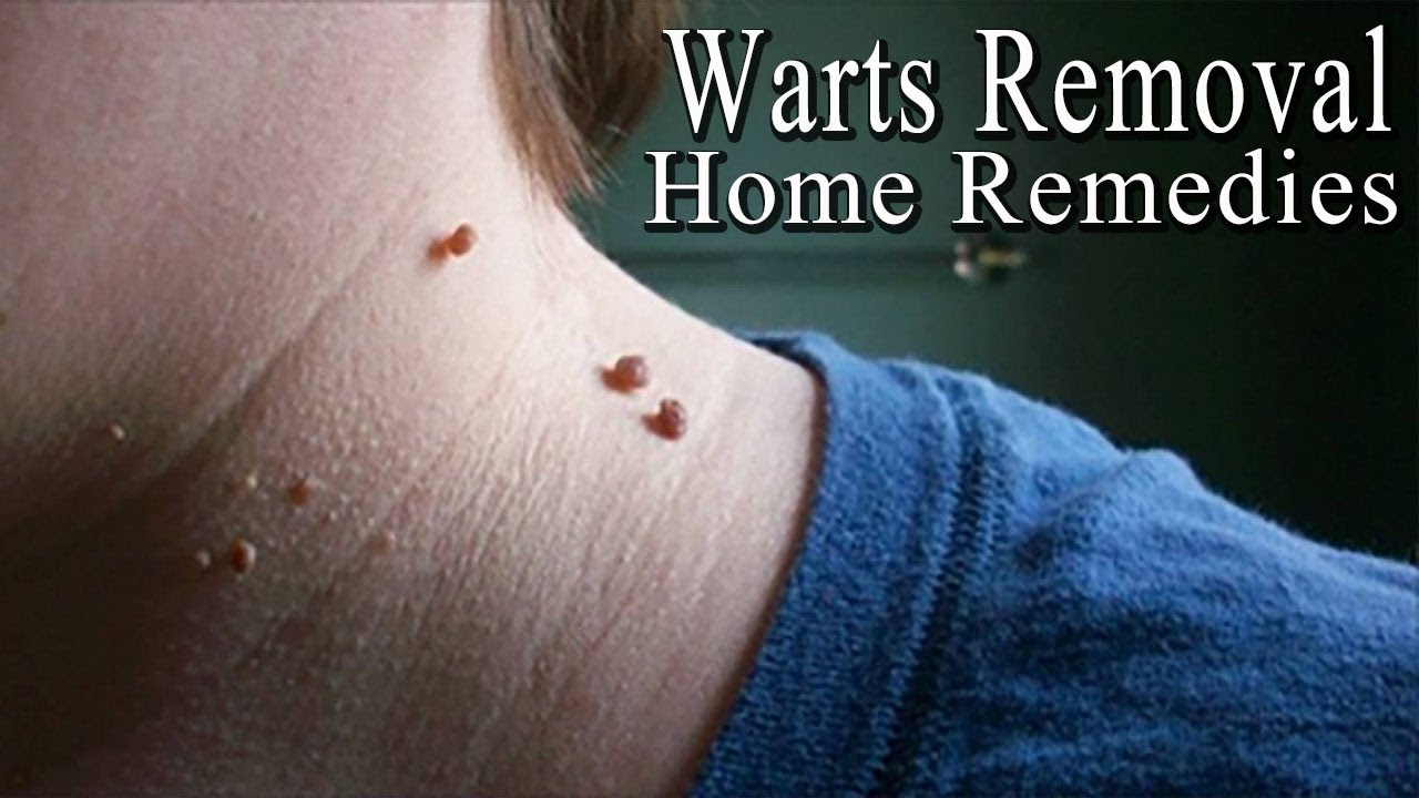 Is it possible to remove warts 59
