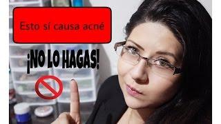 5 errores que te causan acné