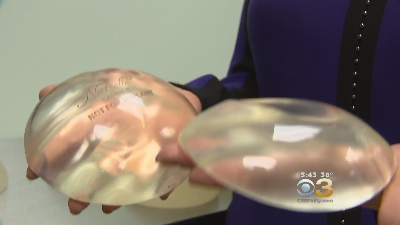Many Women Getting Breast Implants Removed In Light Of Health Concerns