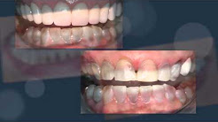 Tetracycline Stained Teeth Smile Improvement by Dr. Craig Carlson