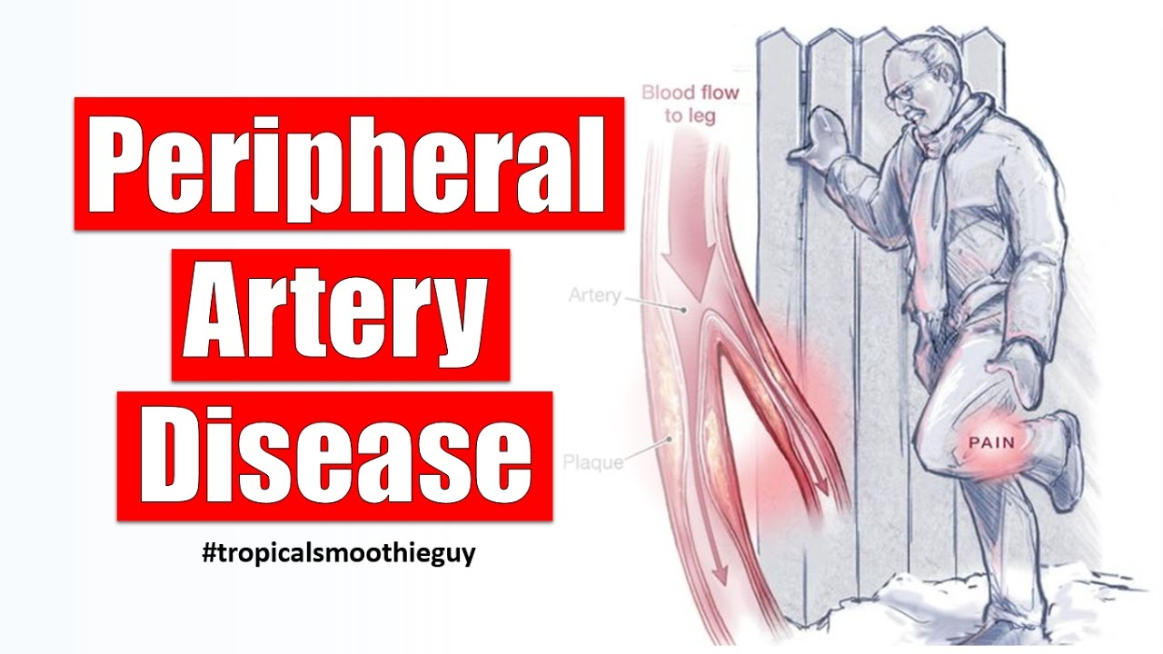 How Peripheral Artery Disease Affects Your Circulation - YouTube