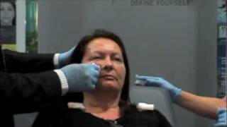Restylane® Injection to Tear Troughs Demonstration by Toronto Plastic Surgeon, Dr. Weinberg Thumbnail
