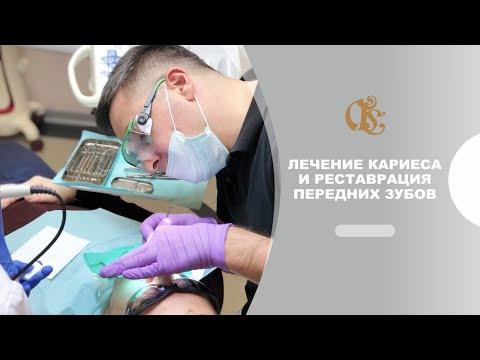 Лечение кариеса и реставрация передних зубов. Стоматологическое лечение. #Стоматология в Петербурге