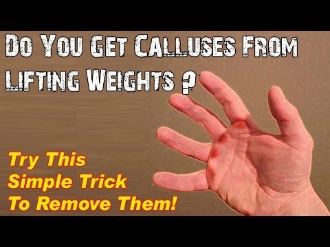 Ask Lee: Calluses on Hands from Lifting Weights